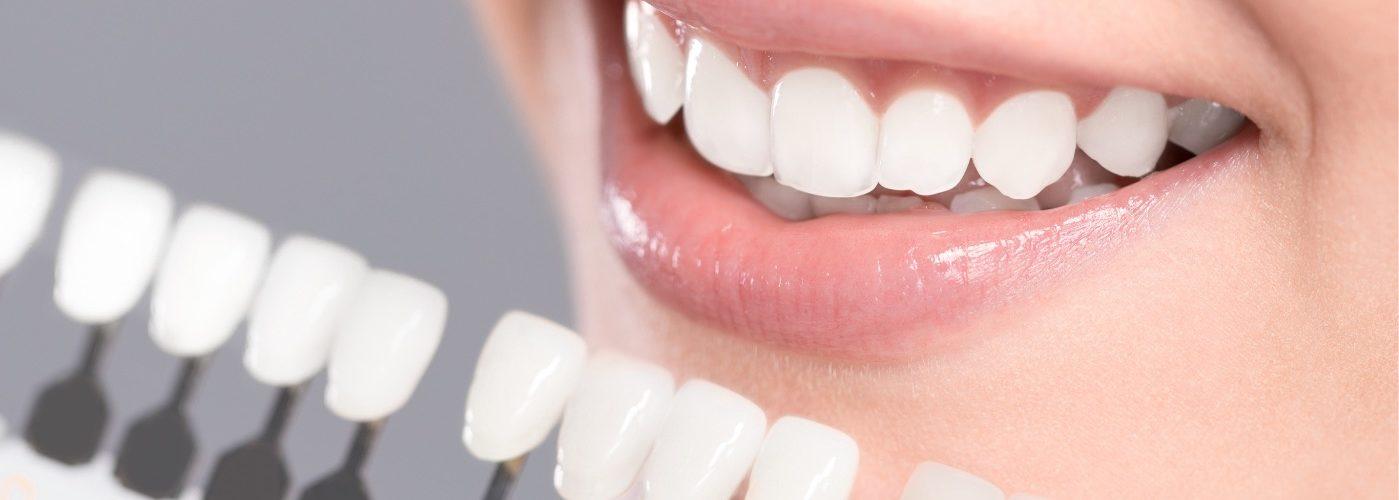 Estetica   Studio Dentistico Valdinoci