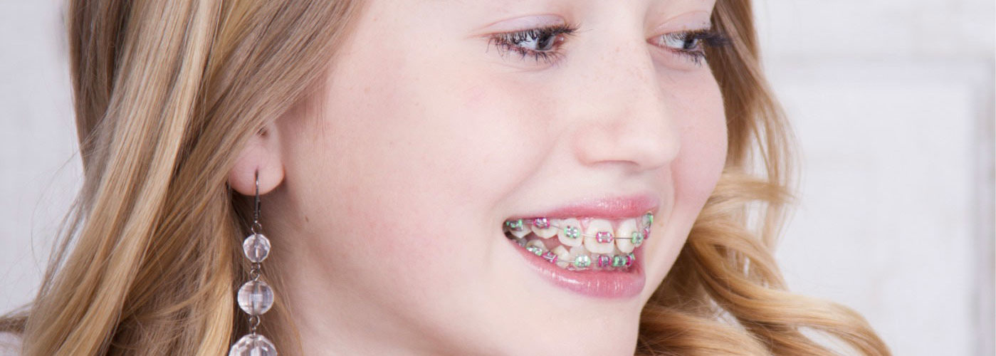 Ortodonzia a Forlì | Studio Dentistico Valdinoci | Dentista a Forlì