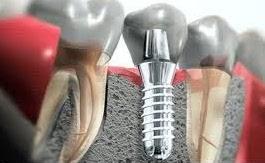 impianto dentale | Studio Dentistico Valdinoci Forlì