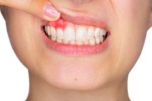 Parodontite | Studio Dentistico Valdinoci